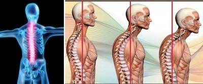 Imagen La alineación de la columna vertebral